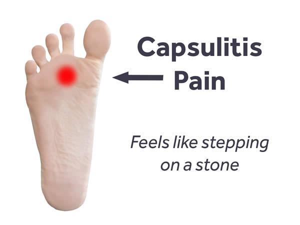 How to Treat Swollen Feet pictures