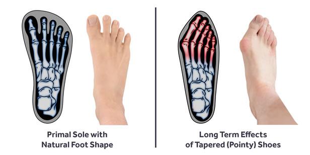 primal-sole-foot-shape-comparison
