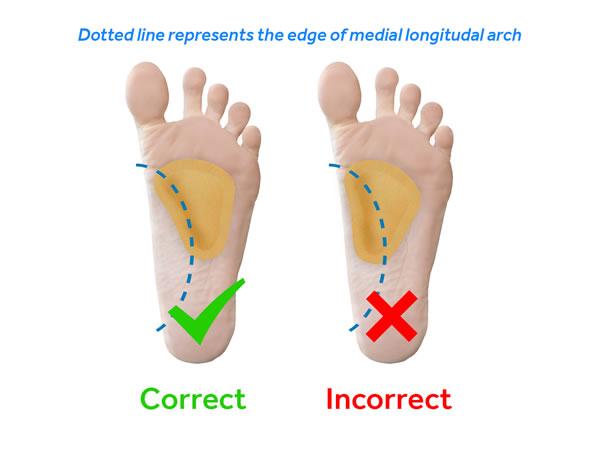 metatarsal-pad-longitudal-arch