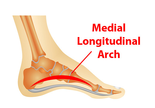 The Mighty Arch, Part 1: A Natural Cure for Plantar Fasciitis?