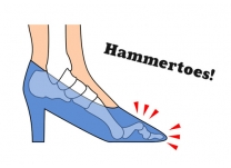 Are High Heels Giving You Hammer Toes? Tips for Prevention and Treatment