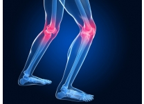Knee Arthritis? Change Your Shoes for Prevention and Treatment