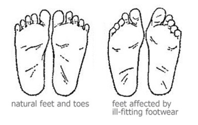 A Minimalist Miracle? Correct Toes May Prevent, Treat and Cure Foot Injuries Without Surgery