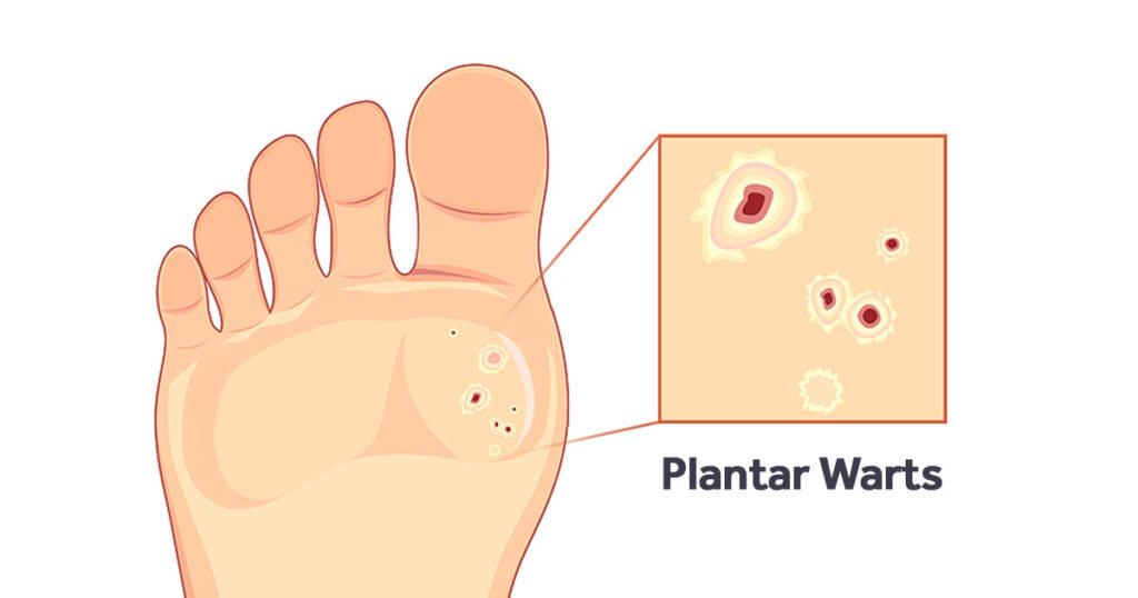 mod de a scăpa de pastile parazite efectele dezintoxicării colonului