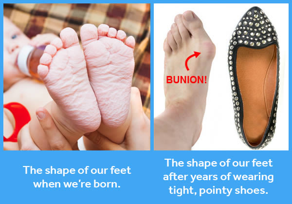 Bunion Treatment Without Surgery - It May be Easier Than You Think