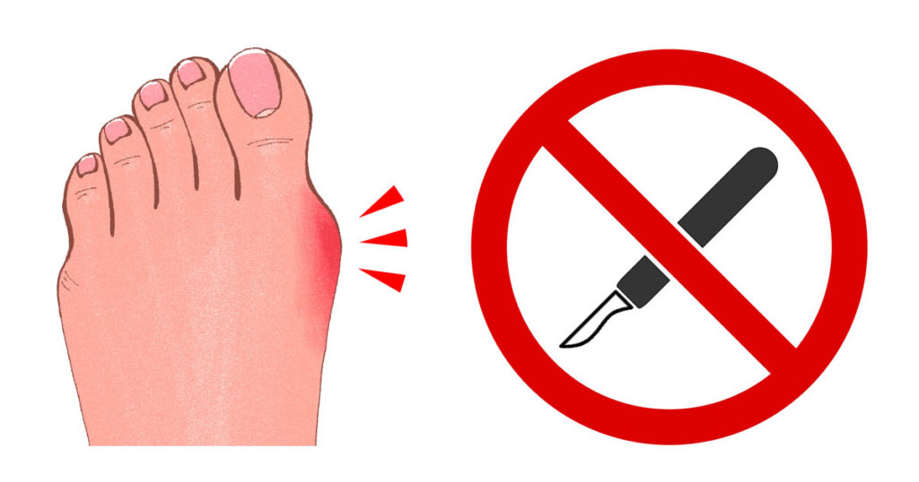 Treating Bunions Without Surgery: Easier Than You Think