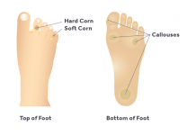 What Causes Foot Calluses and Corns? Tips for Prevention and Treatment