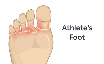 prevent-diagnose-treat-athletes-foot