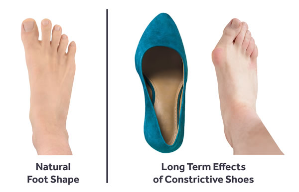 Foot Shape Comparison