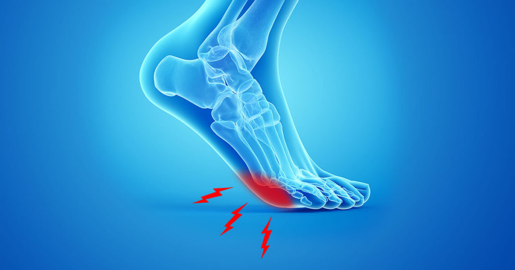 Numbness or Pain in the Ball of Your Foot? 3 Steps to Treat Neuromas Naturally