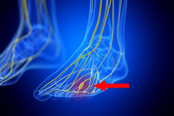 Neuroma Between Metatarsal Bones in Foot