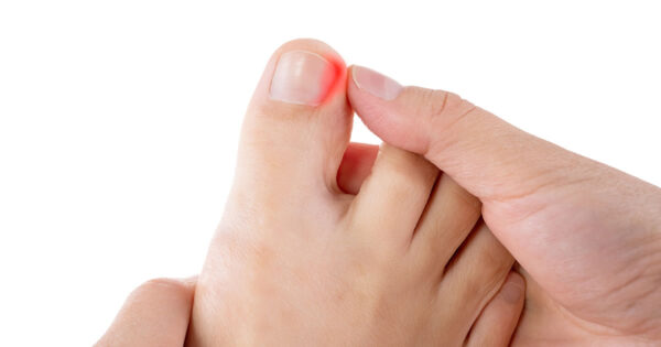 What Causes Ingrown Toenails? Tips for Prevention and Treatment